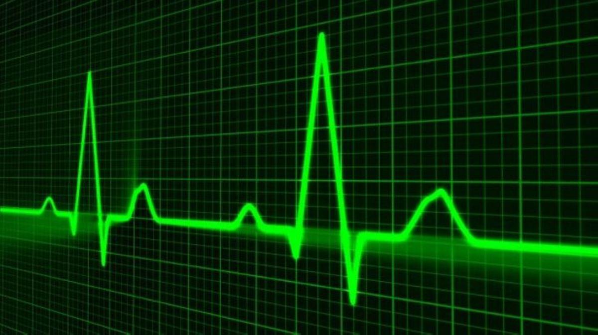 puls pri infarkte miokarda kakoj 2 1