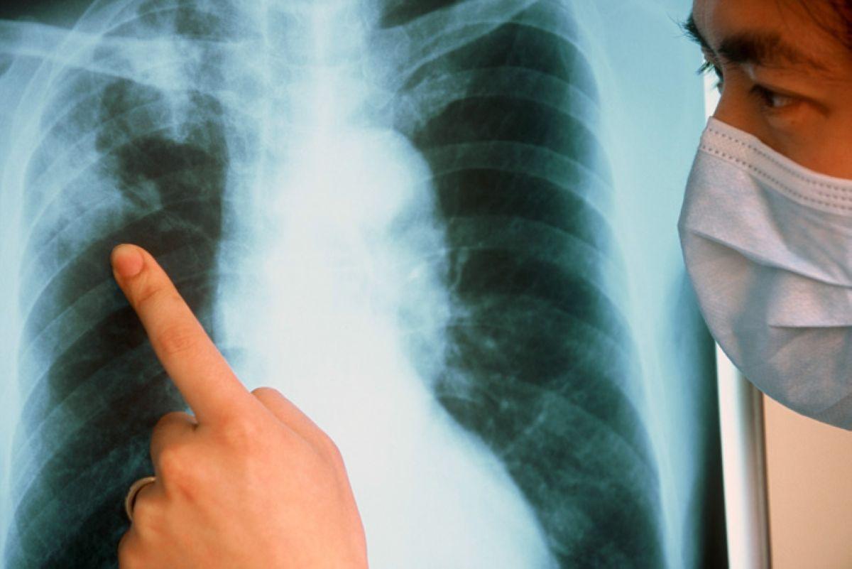 otkrytaya forma tuberkuleza 2